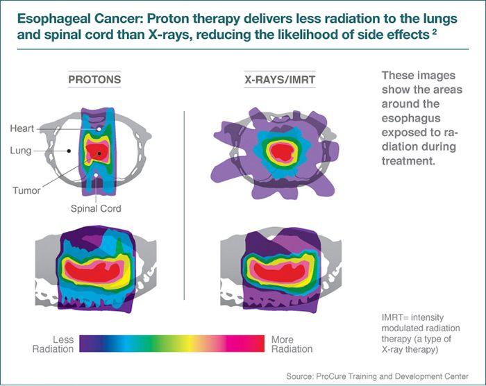 Proton Therapy Proton Doctors Professional Corporation
